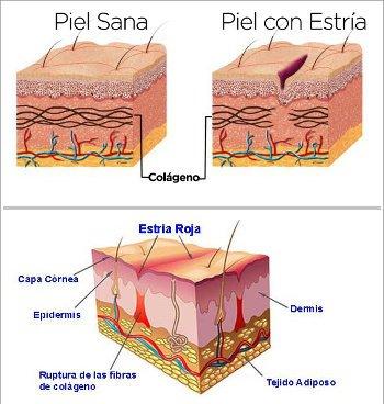 Bio oil, anti estrias